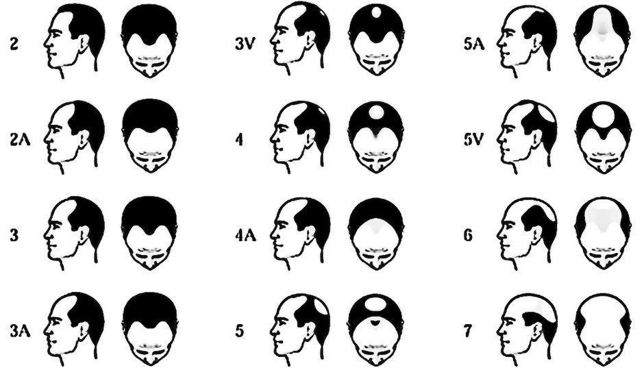 tipos alopecia en hombres