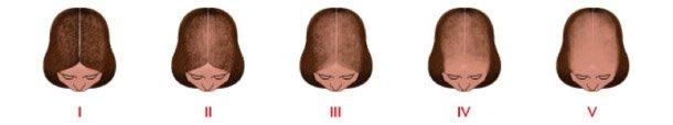 progresión alopecia femenina