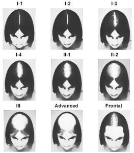Tipos de calvicie en Hombres y Mujeres